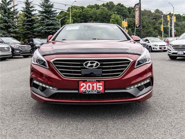 2015 Hyundai Sonata 2.0T Ultimate (Stk: R76749A) in Ottawa - Image 2 of 13