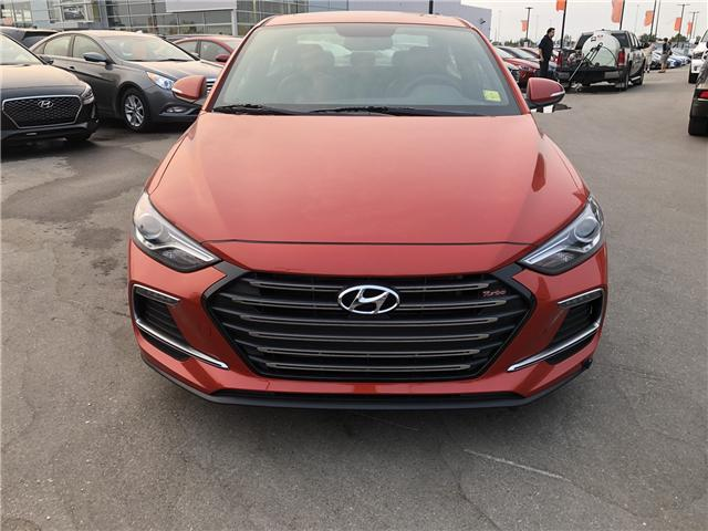 2018 Hyundai Elantra Sport Tech (Stk: H2356) in Saskatoon - Image 2 of 28