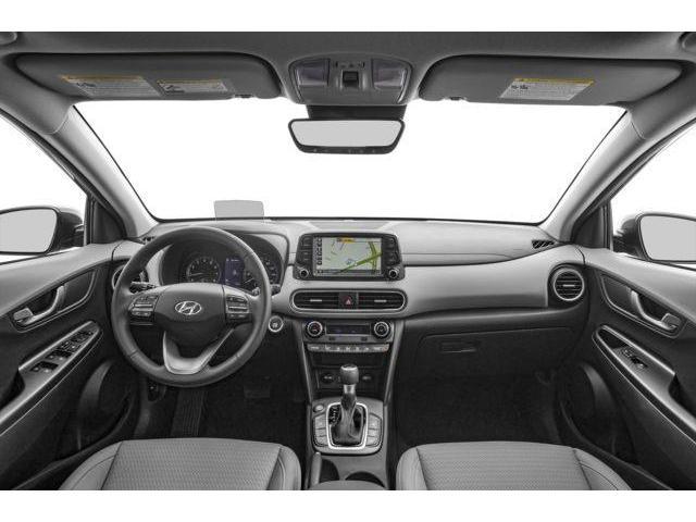 2018 Hyundai KONA 1.6T Ultimate (Stk: 18KN031) in Mississauga - Image 5 of 9