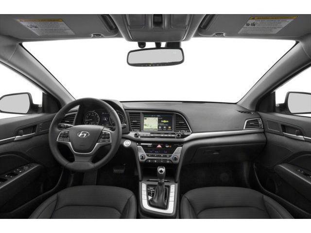 2018 Hyundai Elantra Limited (Stk: EA18030) in Woodstock - Image 5 of 9