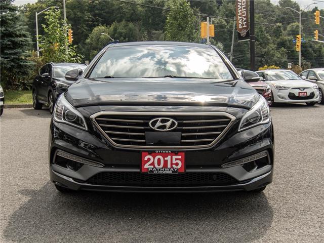 2015 Hyundai Sonata 2.0T (Stk: R86386A) in Ottawa - Image 2 of 11