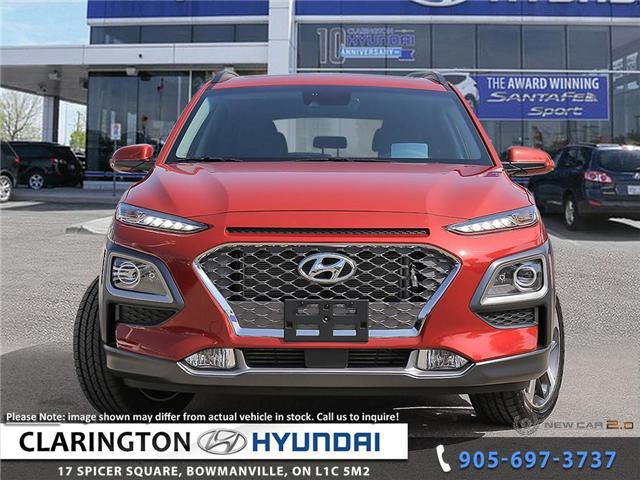 2018 Hyundai KONA 1.6T Ultimate (Stk: 18581) in Clarington - Image 2 of 25