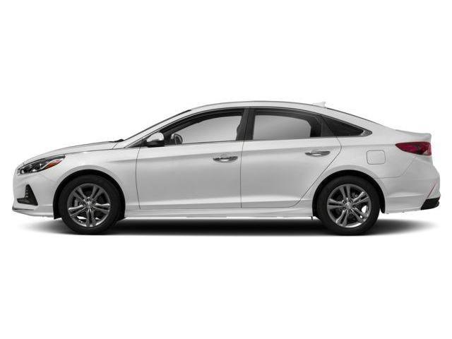2018 Hyundai Sonata  (Stk: R8336) in Brockville - Image 2 of 9
