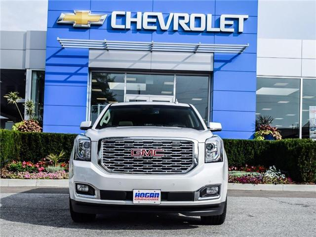 2018 GMC Yukon Denali (Stk: 8141774) in Scarborough - Image 4 of 30