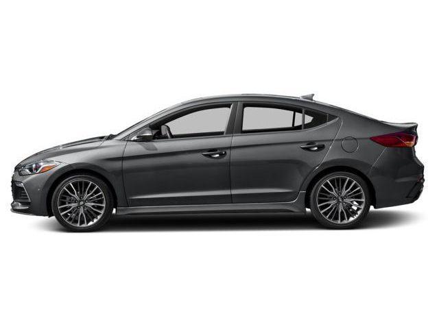 2018 Hyundai Elantra Sport (Stk: 58123) in Kitchener - Image 2 of 9