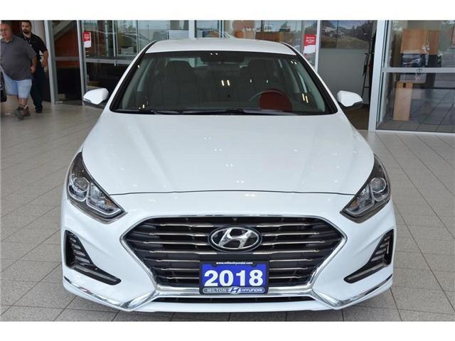 2018 Hyundai Sonata  (Stk: 663732) in Milton - Image 2 of 38