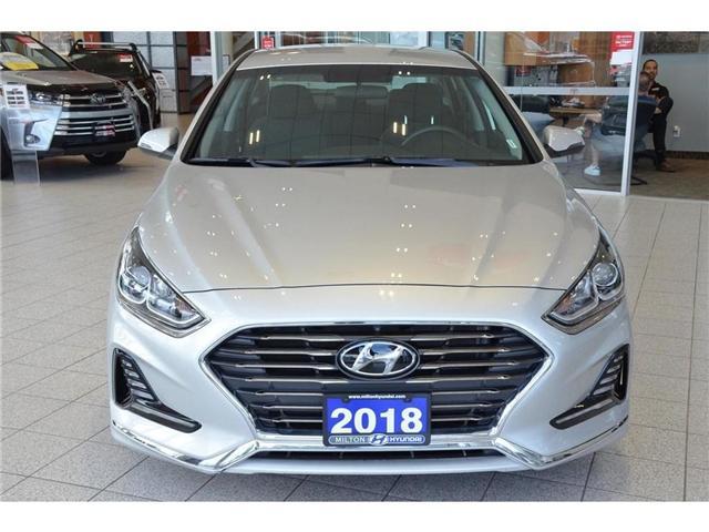2018 Hyundai Sonata GL (Stk: 628256) in Milton - Image 2 of 39