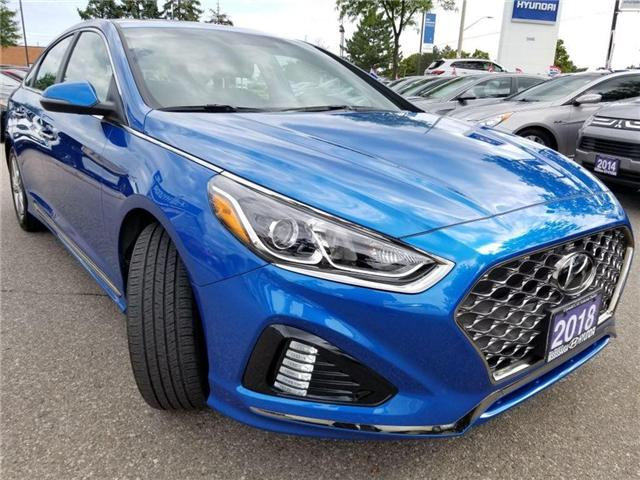 2018 Hyundai Sonata Sport-Sunroof and Alloy (Stk: op9961) in Mississauga - Image 3 of 16