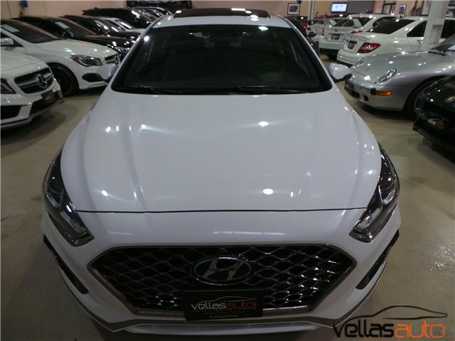 2018 Hyundai Sonata  (Stk: NP6449) in Vaughan - Image 2 of 29