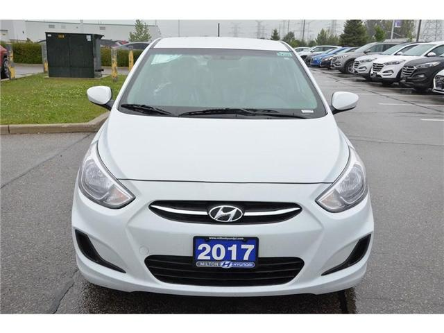 2017 Hyundai Accent  (Stk: 369272D) in Milton - Image 2 of 23