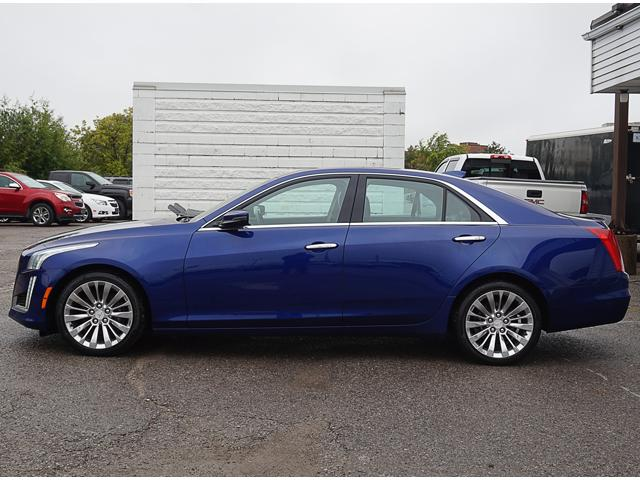 2015 Cadillac CTS 2.0L Turbo Luxury (Stk: 18639A) in Peterborough - Image 2 of 19