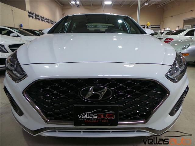 2018 Hyundai Sonata  (Stk: NP4485) in Vaughan - Image 2 of 30