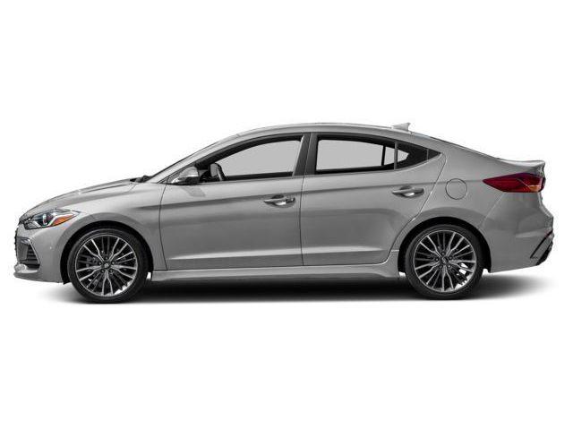 2018 Hyundai Elantra Sport Tech (Stk: 58237) in Kitchener - Image 2 of 11