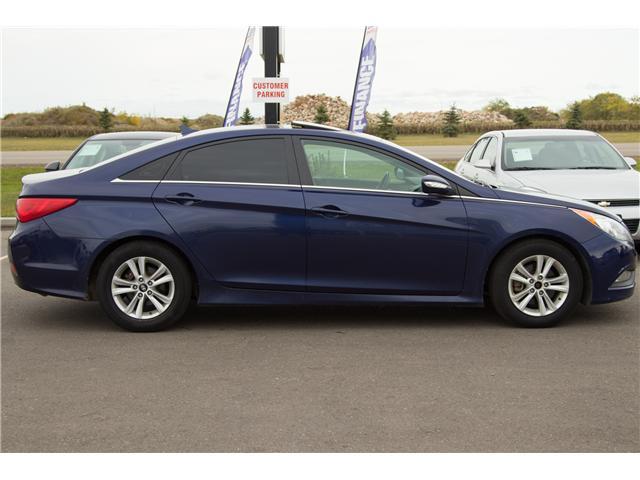 2014 Hyundai Sonata GLS (Stk: P319) in Brandon - Image 3 of 10