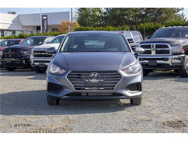 2019 Hyundai Accent Preferred (Stk: KA046279) in Abbotsford - Image 2 of 24