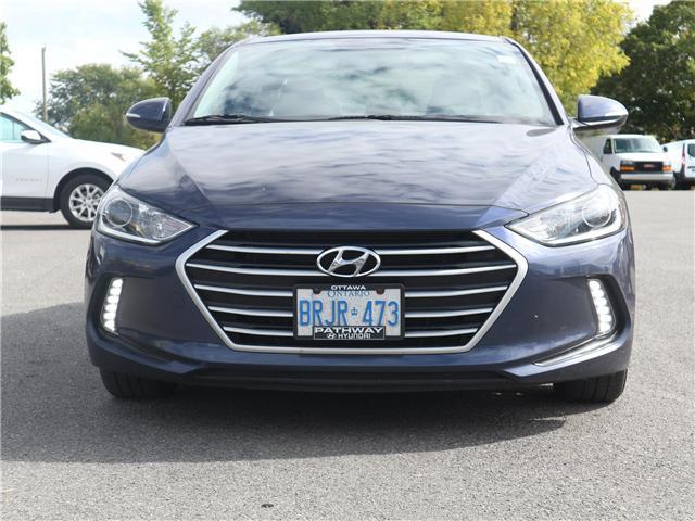2017 Hyundai Elantra  (Stk: 3318) in Ottawa - Image 2 of 20