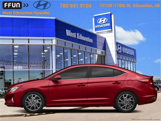 2019 Hyundai Elantra  (Stk: EL98772) in Edmonton - Image 1 of 1