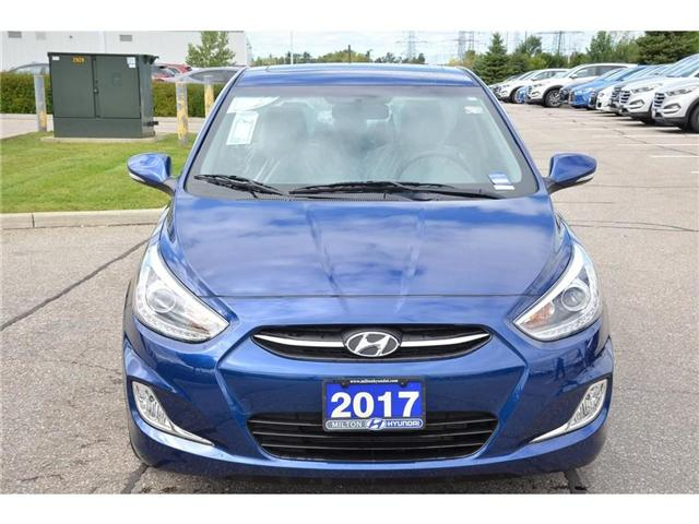 2017 Hyundai Accent GLS (Stk: 310529D) in Milton - Image 2 of 21