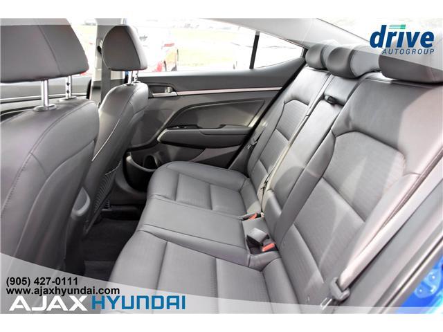 2017 Hyundai Elantra Limited Ultimate (Stk: 17878) in Ajax - Image 11 of 27