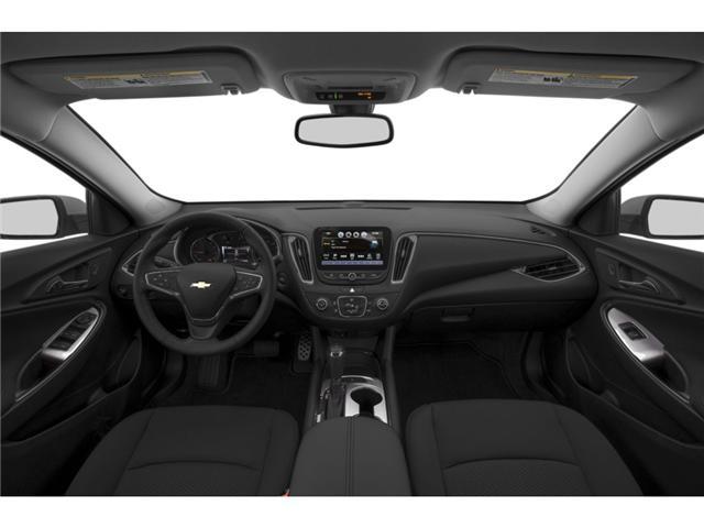 2017 Chevrolet Malibu 1LT (Stk: ) in Ajax - Image 2 of 4