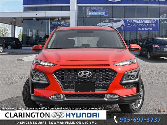 2018 Hyundai KONA 2.0L Preferred (Stk: 18538) in Clarington - Image 2 of 24