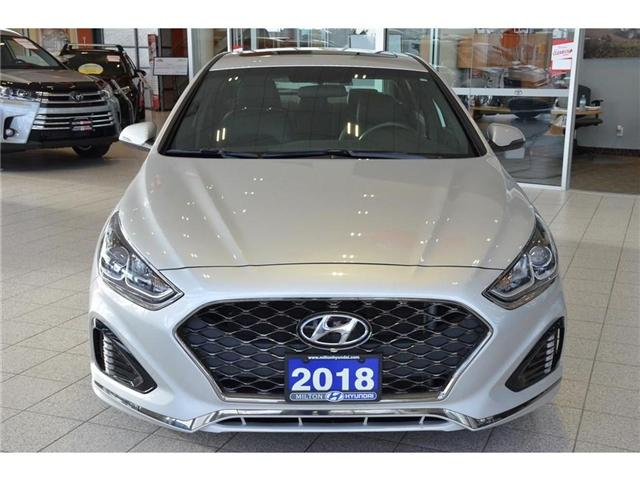 2018 Hyundai Sonata  (Stk: 636486) in Milton - Image 2 of 39