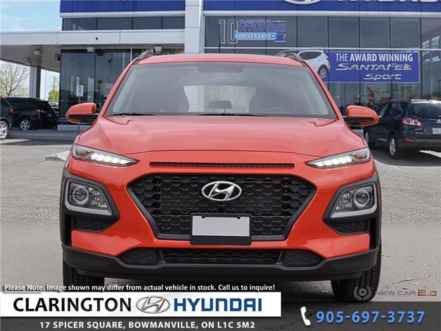 2019 Hyundai KONA 2.0L Essential (Stk: 18771) in Clarington - Image 2 of 24