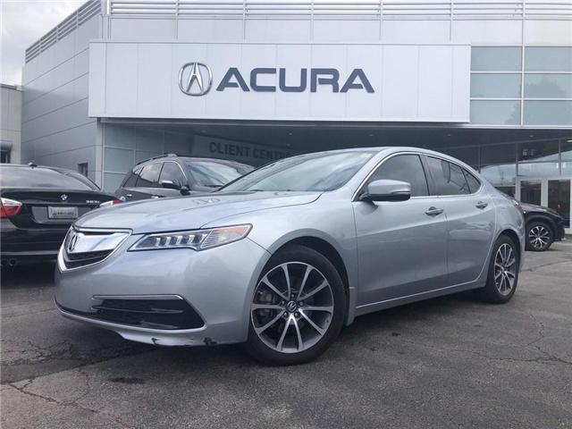 2017 Acura TLX Base (Stk: 3880) in Burlington - Image 2 of 20
