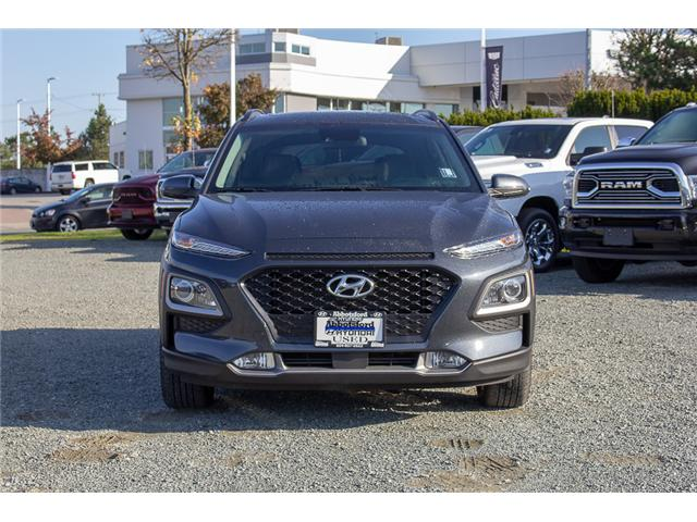 2018 Hyundai KONA 2.0L Luxury (Stk: AH8771) in Abbotsford - Image 2 of 26