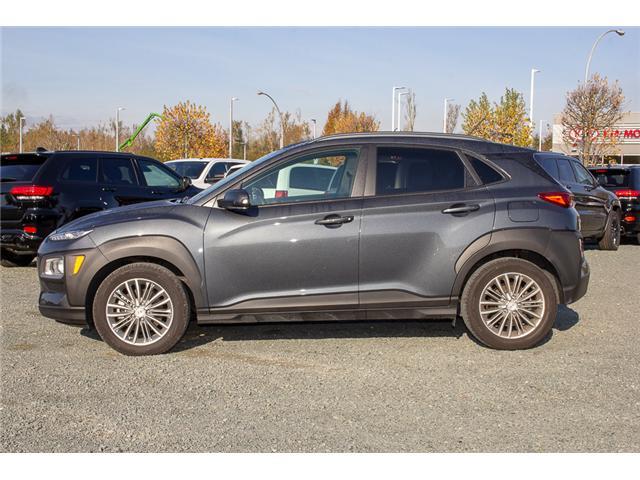 2018 Hyundai KONA 2.0L Luxury (Stk: AH8771) in Abbotsford - Image 4 of 26