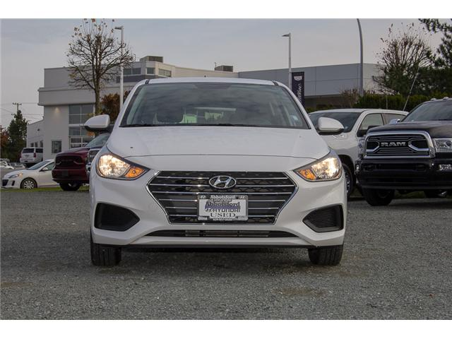 2018 Hyundai Accent GL (Stk: AH8744) in Abbotsford - Image 2 of 28