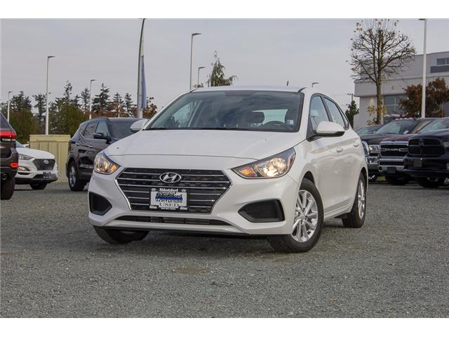 2018 Hyundai Accent GL (Stk: AH8744) in Abbotsford - Image 3 of 28