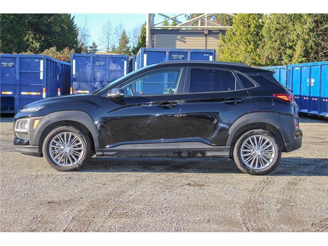 2018 Hyundai KONA 2.0L Luxury (Stk: P9365) in Surrey - Image 4 of 29