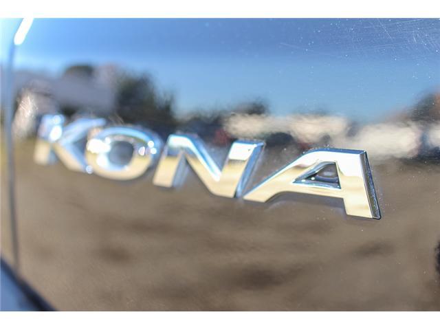 2018 Hyundai KONA 2.0L Luxury (Stk: P9365) in Surrey - Image 10 of 29