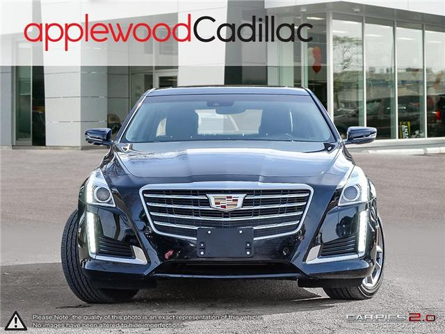 2018 Cadillac CTS 3.6L Luxury (Stk: 4063A) in Mississauga - Image 2 of 29
