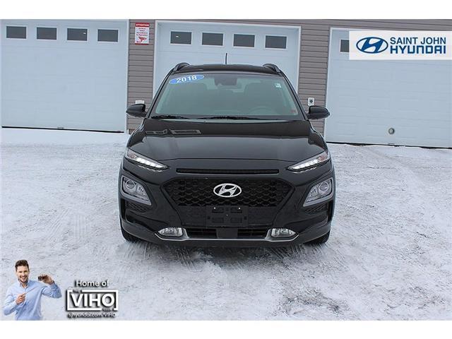 2018 Hyundai KONA 2.0L Luxury (Stk: U1957) in Saint John - Image 3 of 23