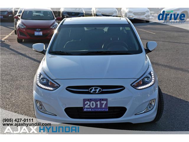 2017 Hyundai Accent GLS (Stk: 17281) in Ajax - Image 3 of 23