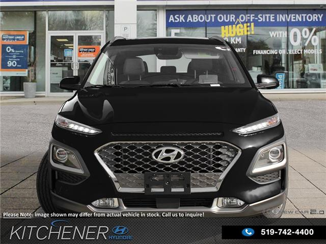 2018 Hyundai KONA 1.6T Ultimate (Stk: 58229) in Kitchener - Image 2 of 23