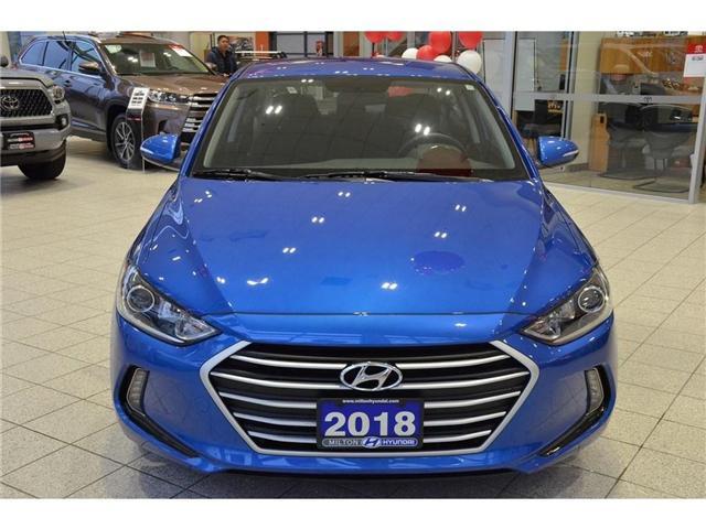 2018 Hyundai  (Stk: 594574) in Milton - Image 2 of 38