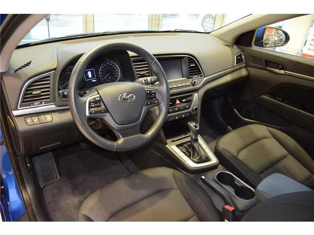2018 Hyundai  (Stk: 594574) in Milton - Image 11 of 38