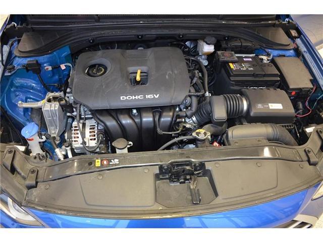 2018 Hyundai  (Stk: 594574) in Milton - Image 38 of 38