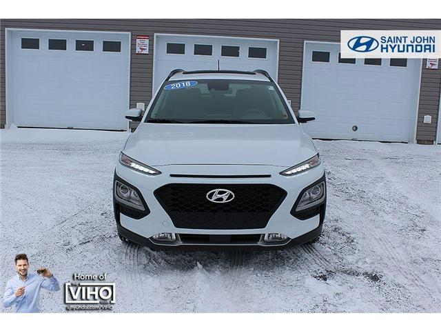 2018 Hyundai KONA 2.0L Luxury (Stk: U1971) in Saint John - Image 4 of 23
