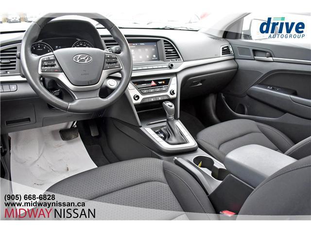 2018 Hyundai Elantra GLS (Stk: U1522R) in Whitby - Image 2 of 24
