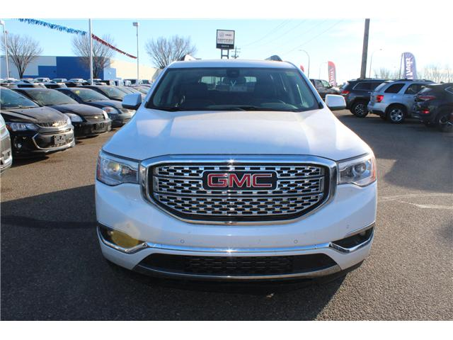 2017 GMC Acadia Denali (Stk: 155304) in Medicine Hat - Image 2 of 7