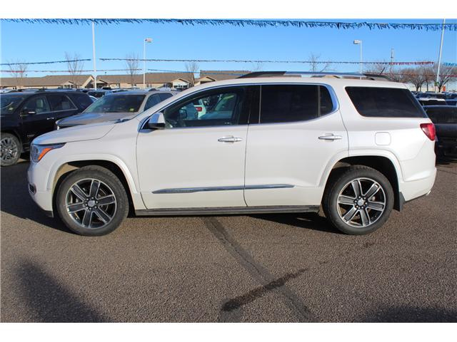 2017 GMC Acadia Denali (Stk: 155304) in Medicine Hat - Image 4 of 7