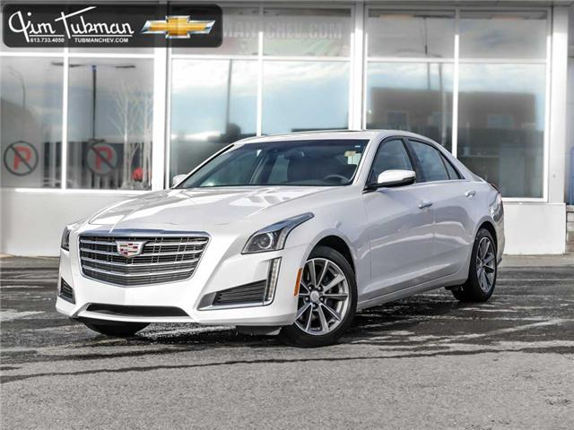 2018 Cadillac CTS 3.6L Luxury (Stk: R7081) in Ottawa - Image 1 of 23