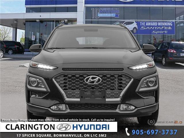 2019 Hyundai KONA 1.6T Trend (Stk: 18893) in Clarington - Image 2 of 24