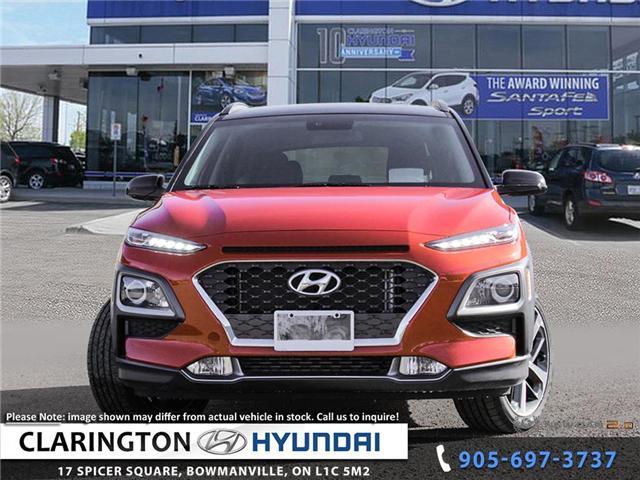 2019 Hyundai KONA 1.6T Trend (Stk: 18894) in Clarington - Image 2 of 24