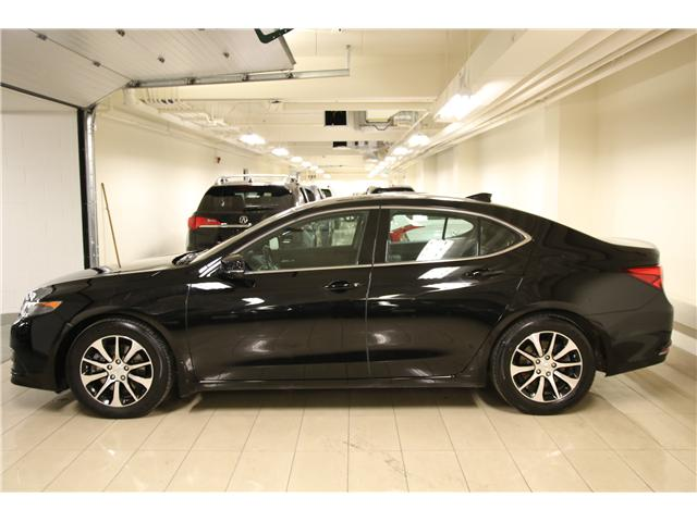 2017 Acura TLX Base (Stk: D12387A) in Toronto - Image 2 of 32
