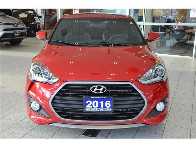 2016 Hyundai  (Stk: 285898) in Milton - Image 2 of 38